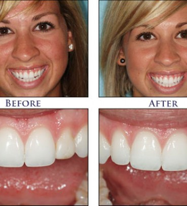 Smile Gallery - Cosmetic Dentist in Snellville | Smiles By